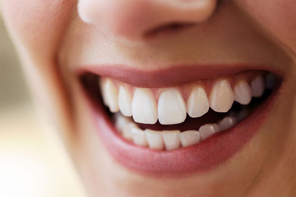 Dental Patient Smiling teeth